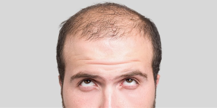Going Bald? Fight Hair Loss With Effective Medicine