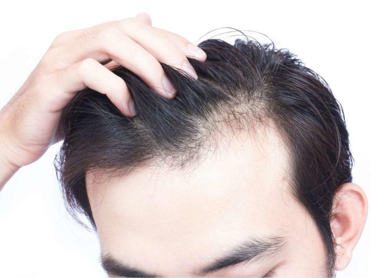 5 Signs That You Might Have Male Pattern Baldness