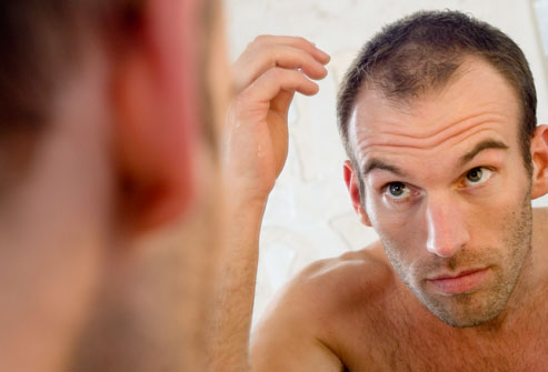 4 Things To Consider When Having A Hair Transplant